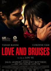 Love and Bruises Image Cover